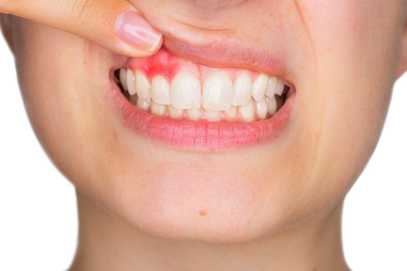 gums Dry Socket