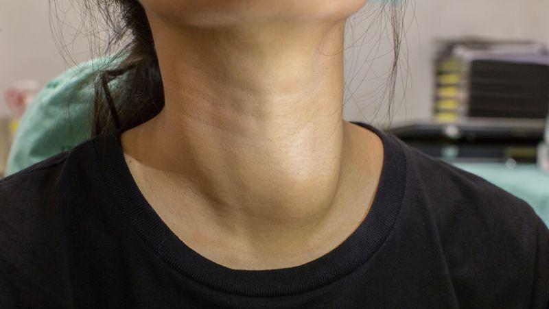 medication for hypothyroidism