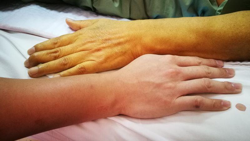 jaundice skin