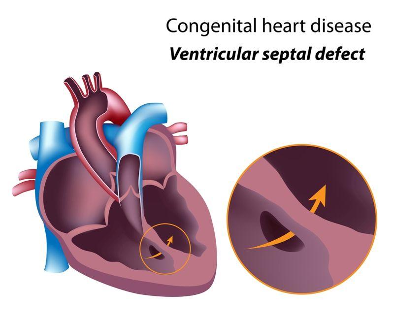 heart hole Pulmonary Hypertension