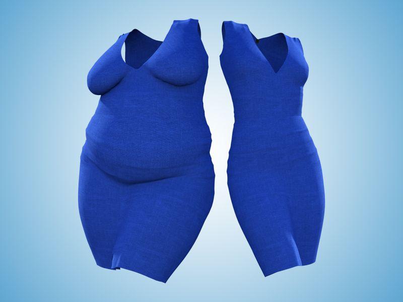 obesity pilonidal cysts