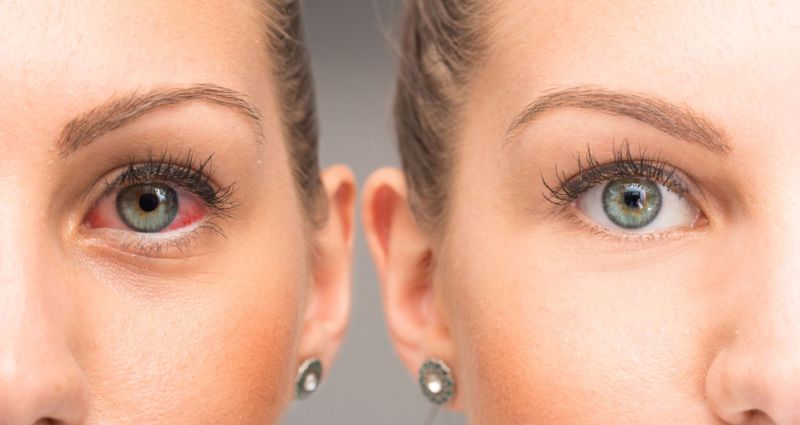What Causes Red Eyes?