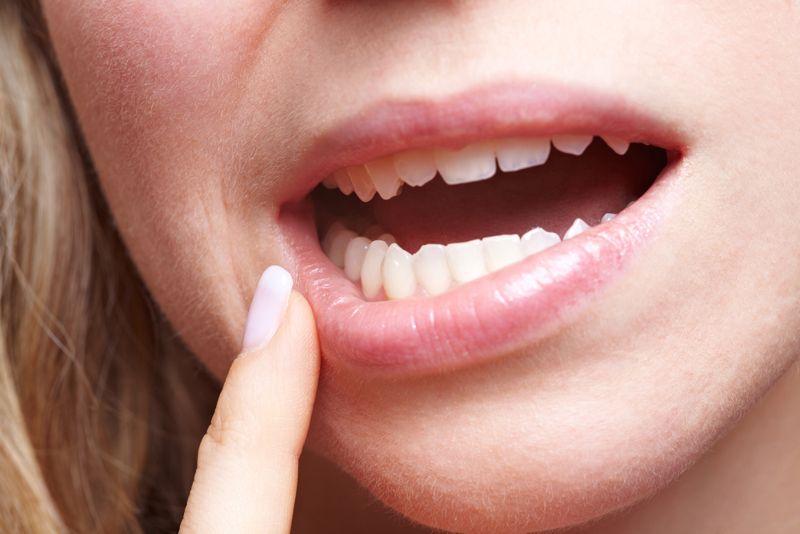 Salivary gland cancer jaw