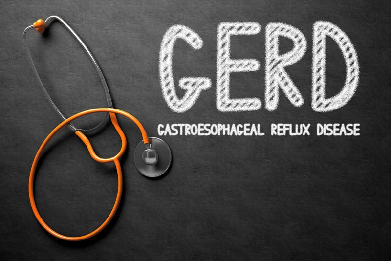 10 Treatments for GERD