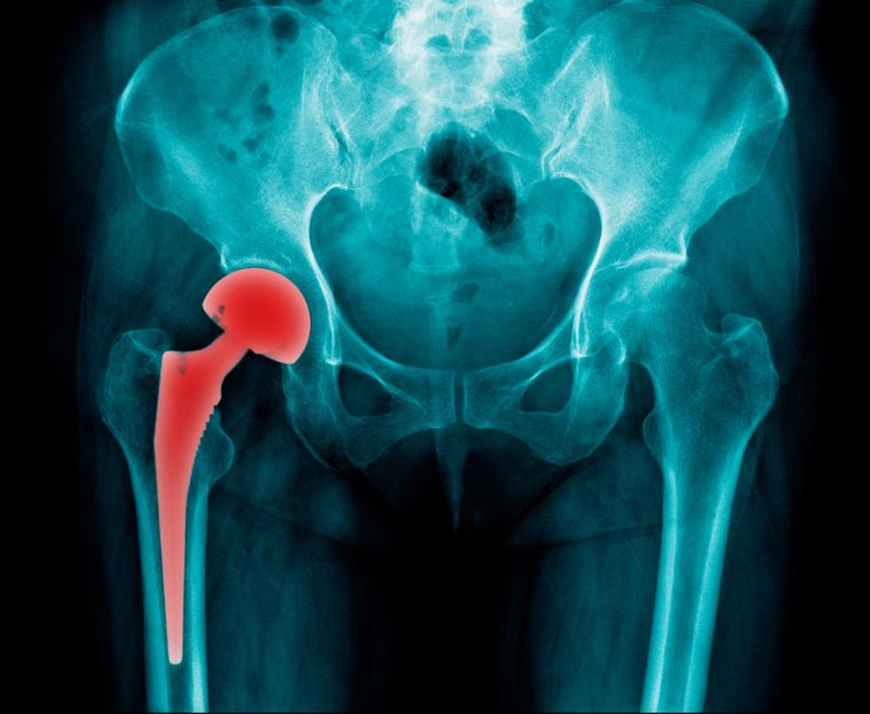 10 Tips for Recovery from Total Hip Replacement