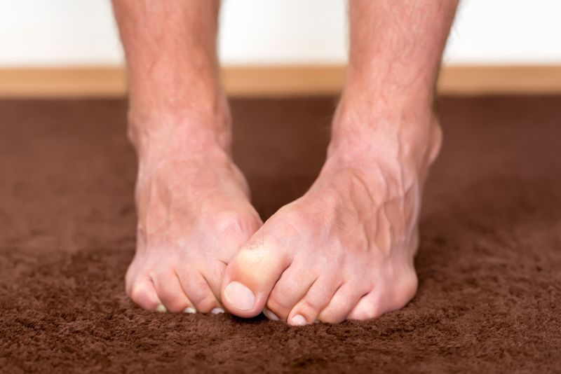 cold feet Aortic Aneurysm