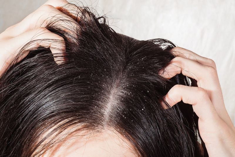 Fungal scalp infection