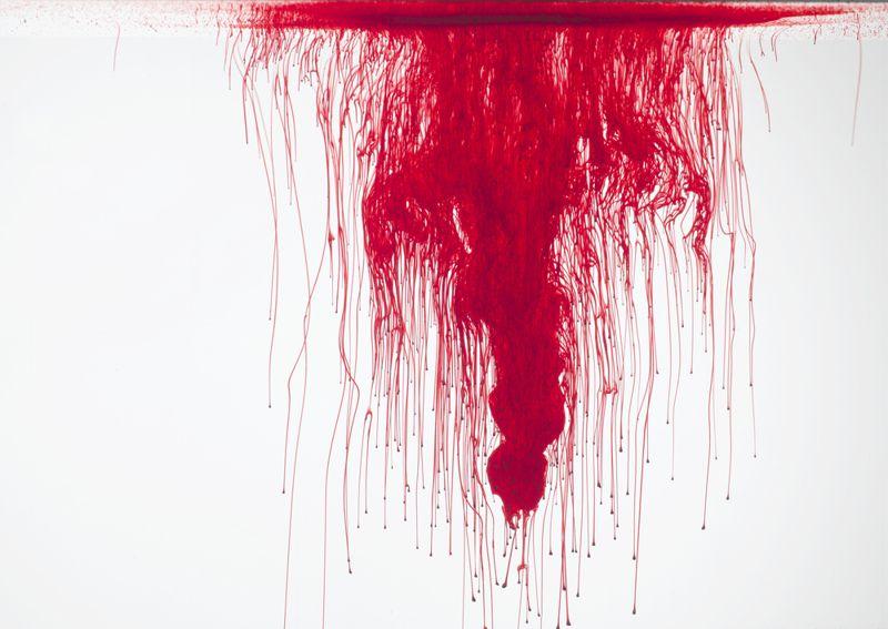 Zollinger-Ellison Syndrome bleeding