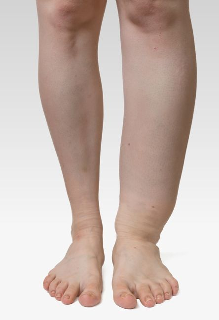 lymphedema extremities