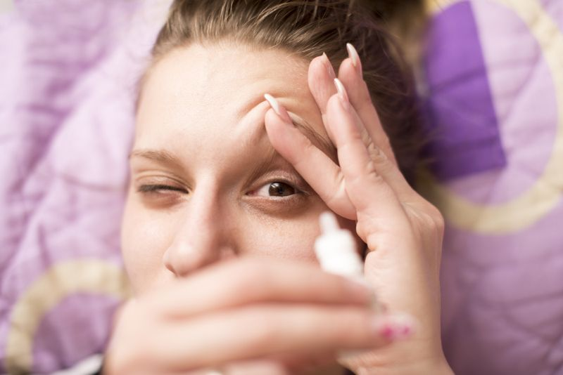 dry eyes Primary biliary cirrhosis