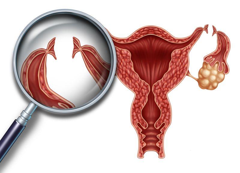 sterile infertility