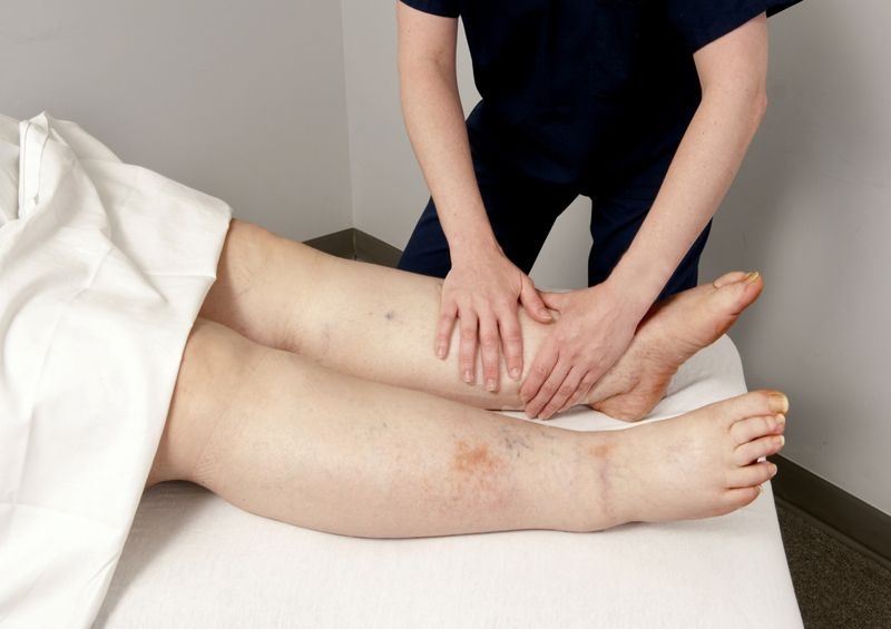infection lymphedema