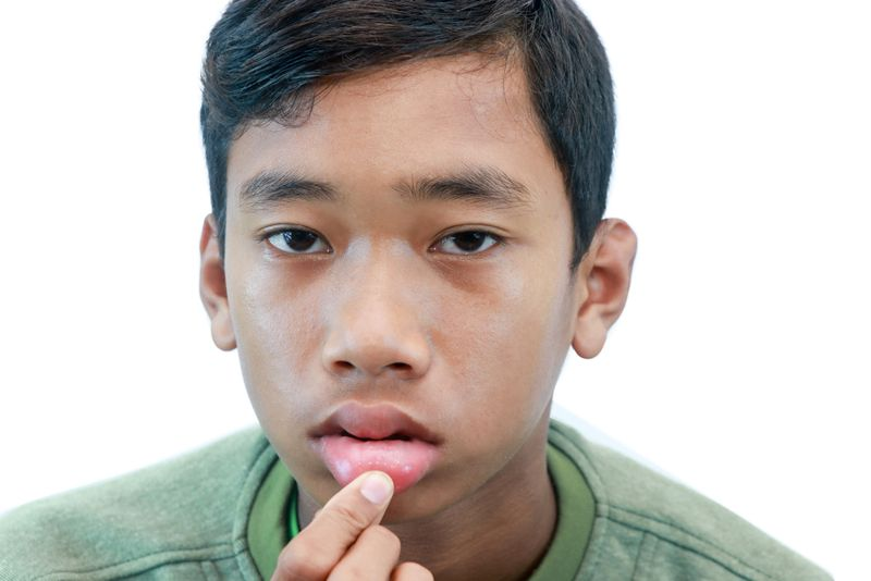 swelling sulfa