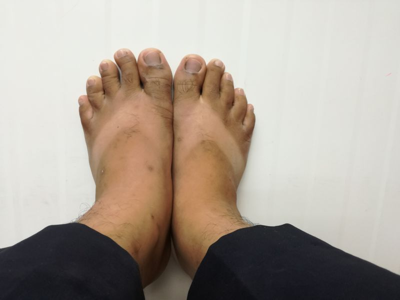 skin lymphedema