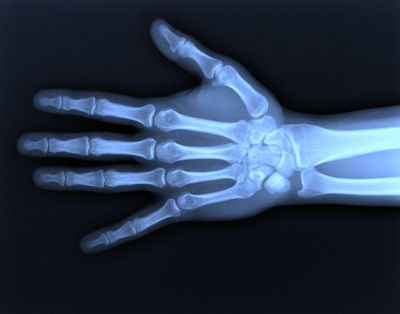 bones mallet finger