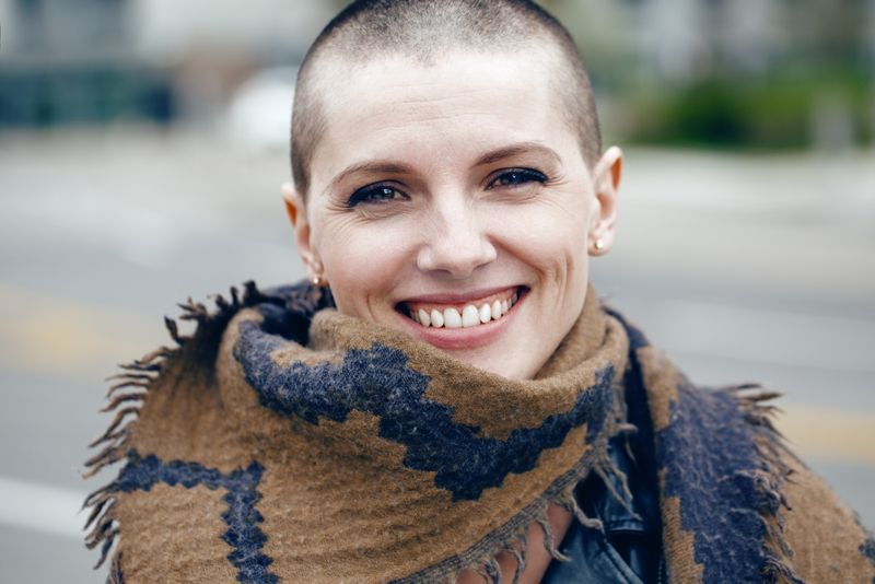 what do i do Alopecia Areata