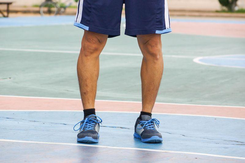leg Clubfoot