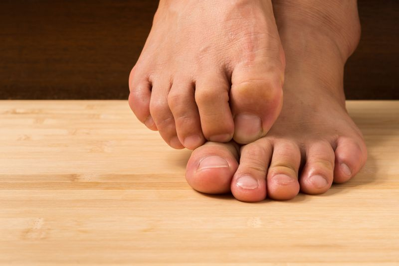 toes Clubfoot