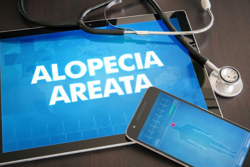 diagnosis Alopecia Areata
