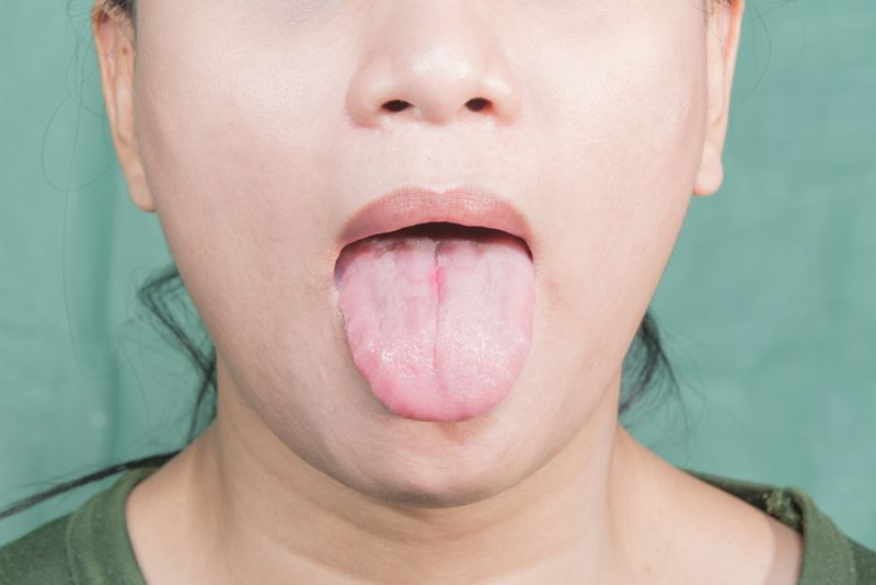 tongue burning mouth syndrome