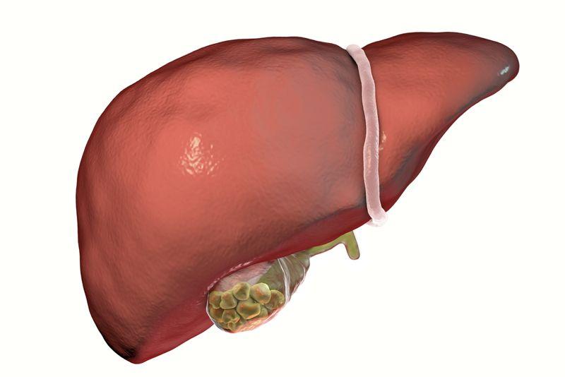 pain bladder stones