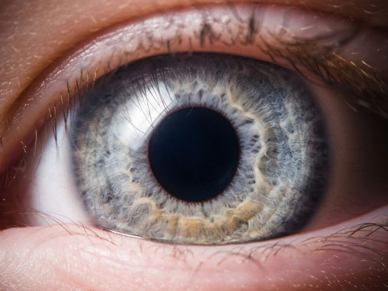 8 Treatments of Macular Degeneration (and How to Prevent it)