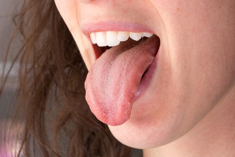 What is Burning Mouth Syndrome? Signs and Symptoms