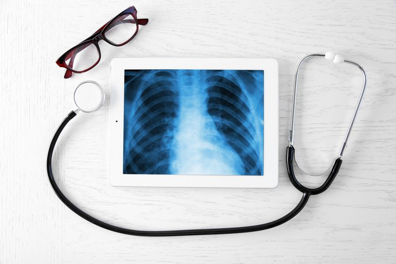 diagnosis Bronchiectasis