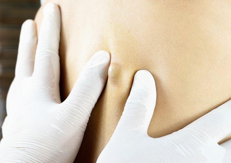 draining Sebaceous cysts