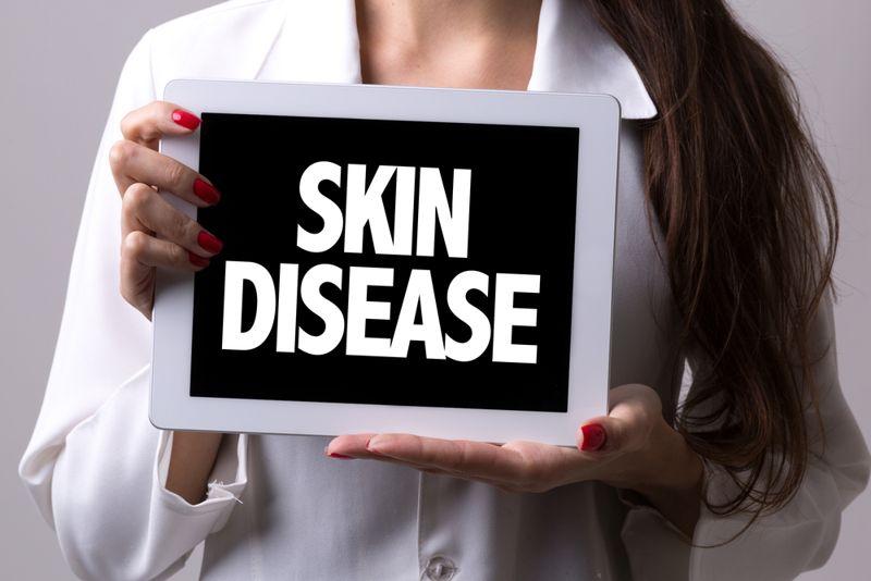 skin disease balanitis