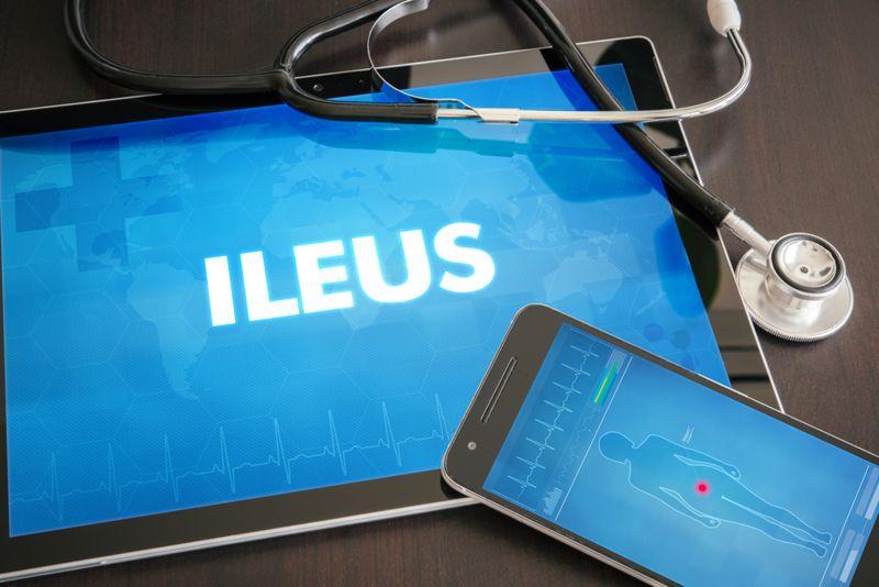what causes ileus