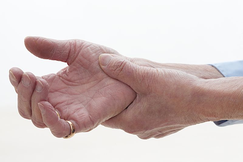 arthritis Niacin
