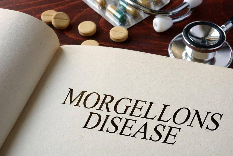 Morgellons diseases