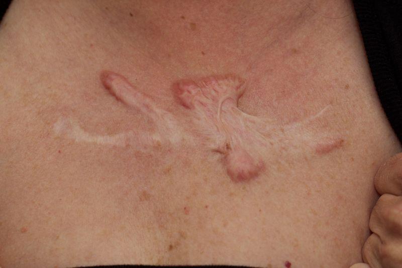 scar Keloids