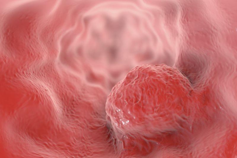 tumors Prolactinoma