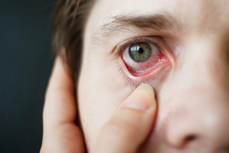 Cause: Allergic Conjunctivitis