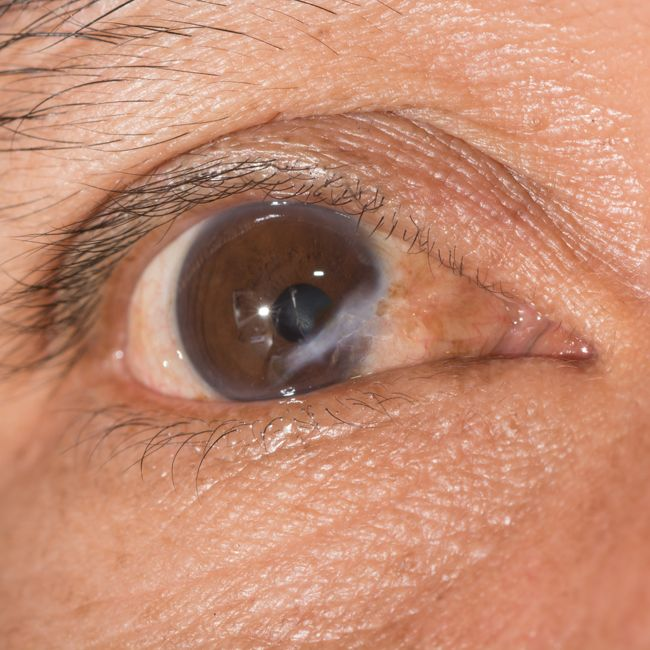 Cause: Damage to teh cornea or surface of the eye