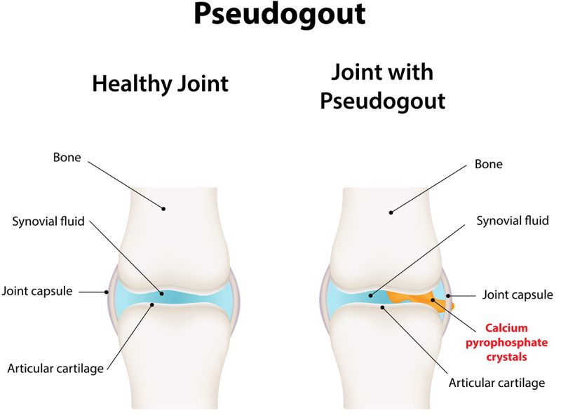 Symptoms and Treatments of Pseudogout