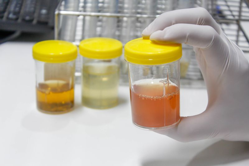 Colored Urine: Medications