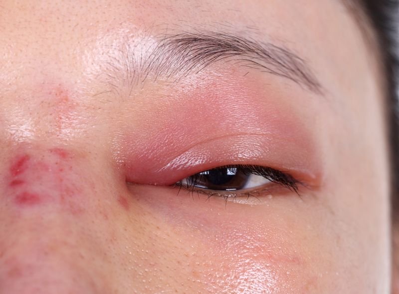 Complications: Cavernous Sinus Thrombosis