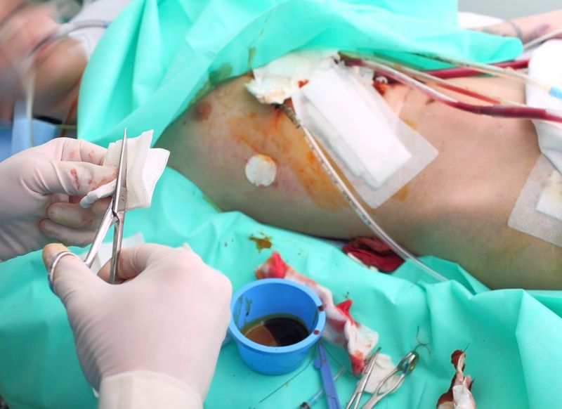 Complications of Surgical Removal