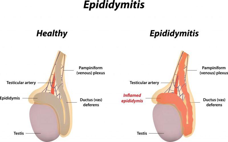 Diagnosis of an Epididymis Cyst