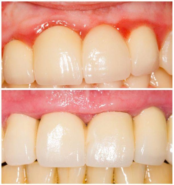 Oral health - especially gums