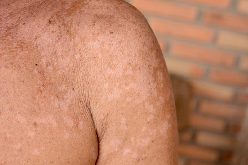 Symptom: Spots on the skin