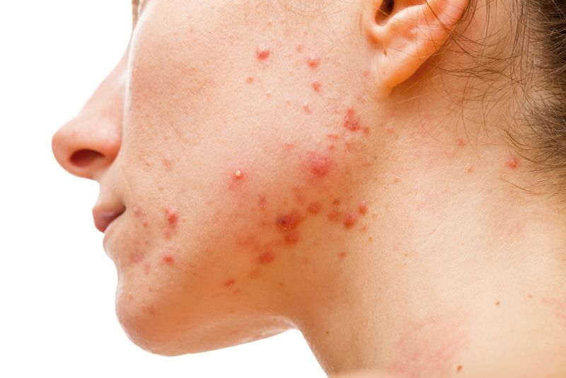 Treat Acne and Oily Skin Bitter Melon