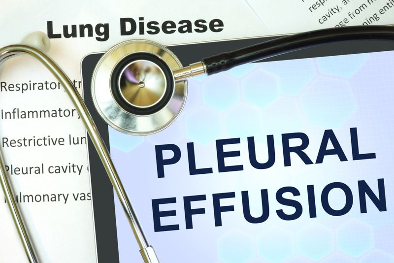 10 Causes, Symptoms, and Treatments of Pleural Effusion