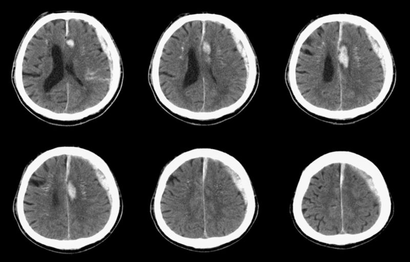 10 Symptoms and Treatments for Subdural Hematoma