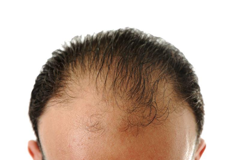 hair loss Sorrel