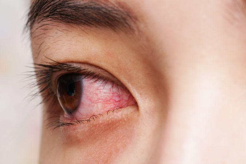 Antioxidant That May Help Fight Eye Disease Soursop