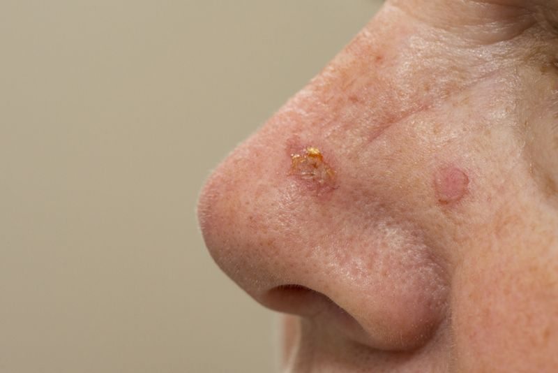 Appearance of Carcinomas